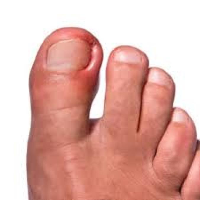 Болит ноготь на большом пальце ноги гной